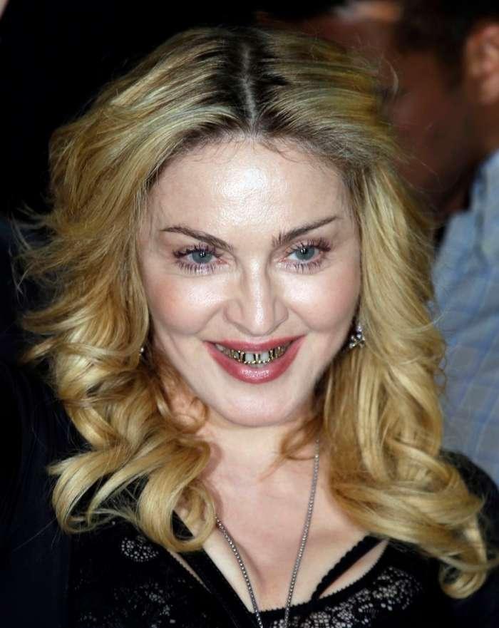 Золотые зубы и бриллиантовые клыки: самые безумные зубные украшения звёзд-13 фото + 1 гиф-