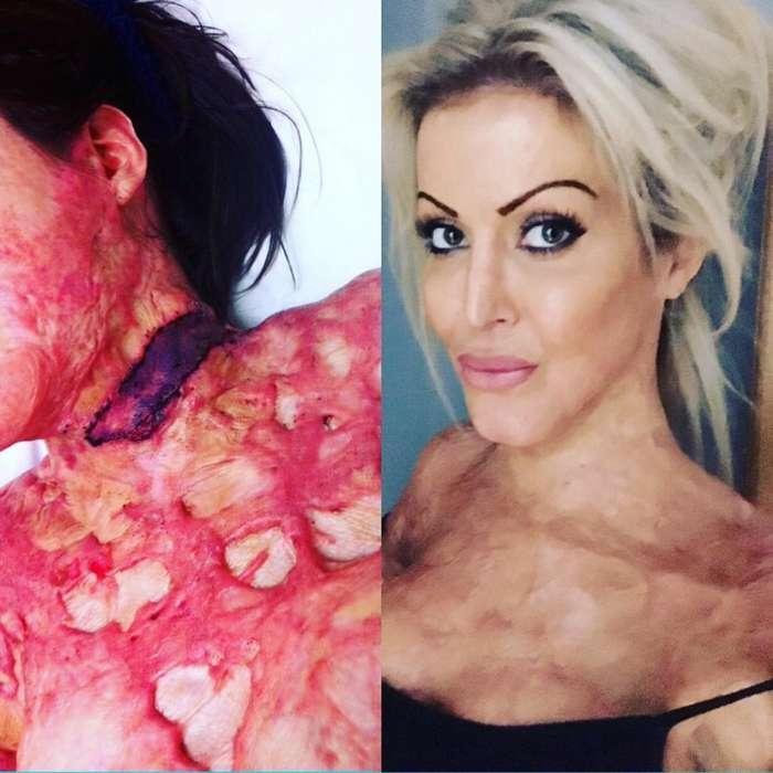 Её подожгла ревнивая жена и 200 операций лишь немного сгладили ужас произошедшего-20 фото-