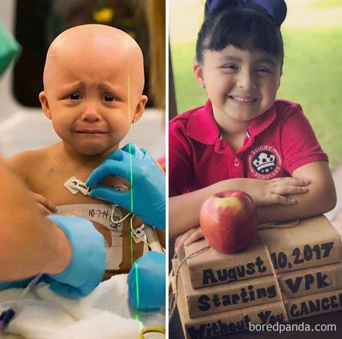 Люди, победившие рак: поразительные фото до и после-47 фото-