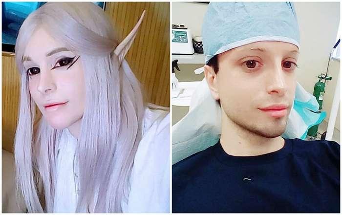 -Живой эльф- потратил $12 тысяч на операцию по пересадке волос-6 фото-