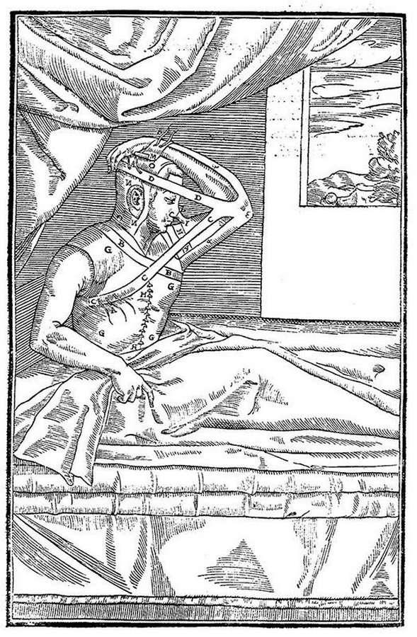 Как Европу чуть не убил сифилис (11 фото)