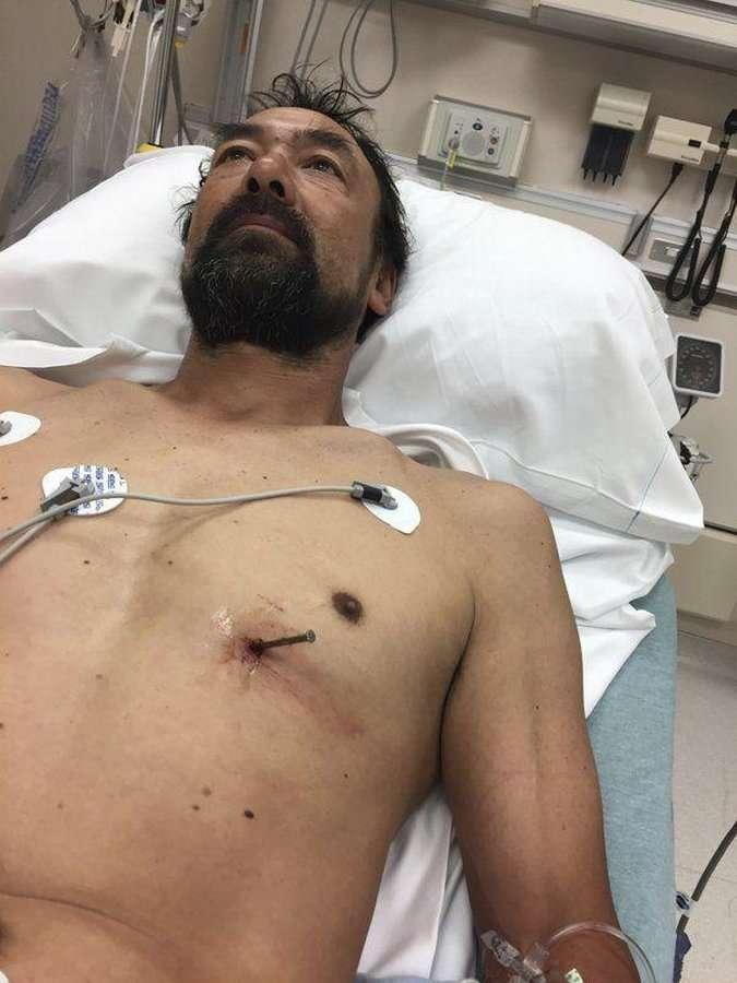 Мужик выстрелил себе в сердце и сам приехал в больницу