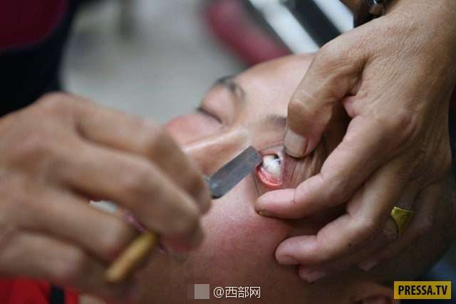 Чистка глаз острым лезвием в Китае (8 фото)