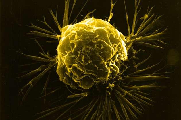 Новая технология распознает рак за 10 секунд-3 фото-