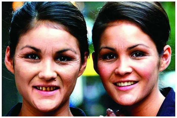 Невероятная разница между близнецами. Что же их так изменило?-13 фото + 1 видео-