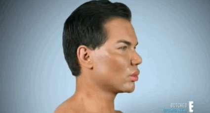 -Реальный Кен- Родриго Алвес показал, как он выглядел до своих 58 пластических операций-17 фото + 1 гиф-