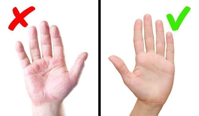 8серьезных заболеваний, окоторых сигнализирует наша кожа