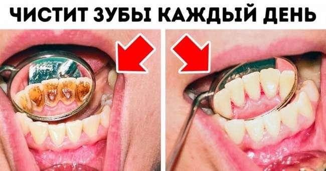 8ошибок вуходе зазубами, которые совершает каждый изнас