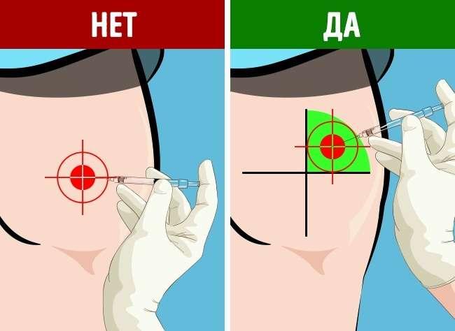 Как правильно сделать укол, если выишприц вруках недержали