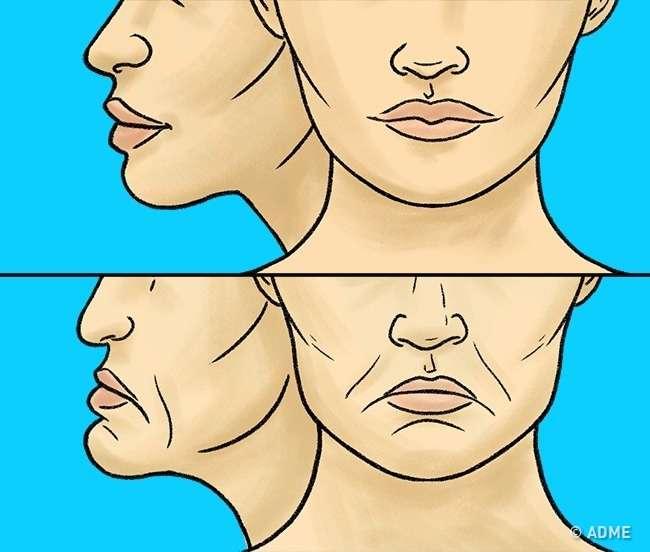 Вот что происходит снашим телом, когда мытеряем все зубы