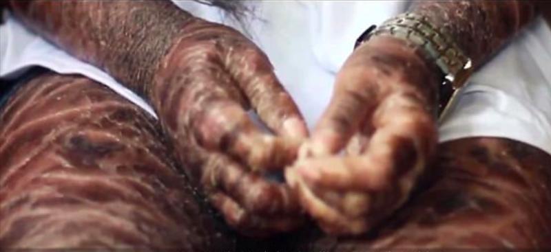Из-за редкого заболевания кожа этой филиппинки стала похожа на змеиную чешую-4 фото + 1 видео-