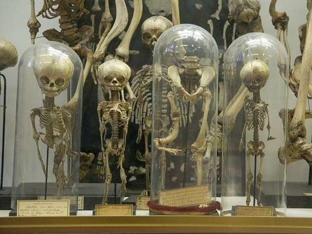 Жуткие музеи мира или слабонервным вход воспрещен-10 фото-