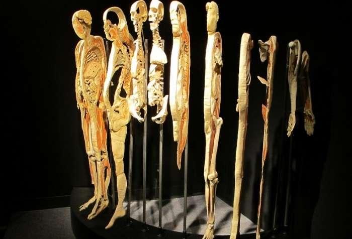 Части тела: приедет ли скандальная выставка Body Worlds в Россию-25 фото-