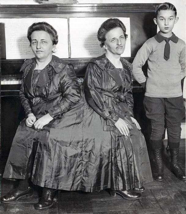 Удивительные истории о сиамских близнецах, у которых все в жизни сложилось хорошо-11 фото-