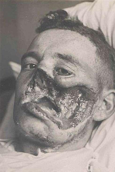 Солдаты Первой мировой - пациенты первых пластических хирургов-17 фото-