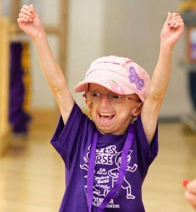 Кайли Халко: девочка-старушка, которая лечит артрит хип-хопом