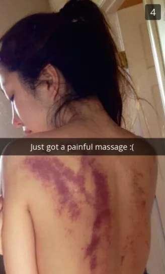На что жалуются массажисты