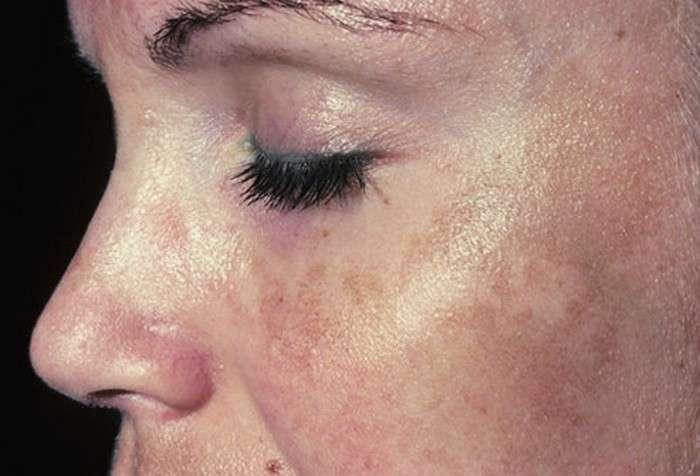 Стираем возраст: самое популярное средство против пигментных пятен, сделать которое сможет каждый