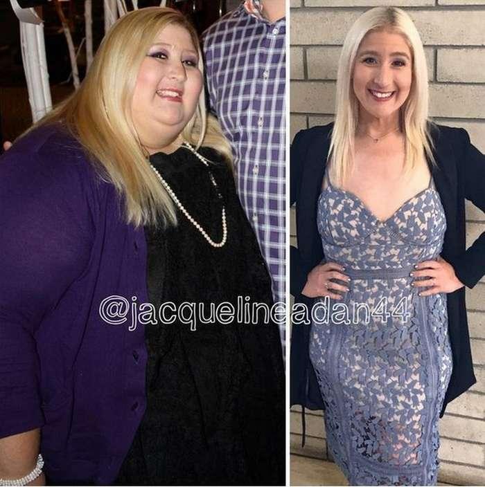 Жаклин Адан похудела на 160 килограмм, теперь борется с лишней кожей (7 фото)