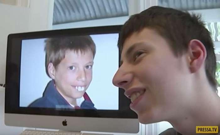Этот мальчик долгое время был объектом насмешек, пока не произошло чудо (8 фото)