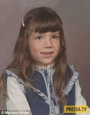 Девочка, выжившая после аборта (12 фото)
