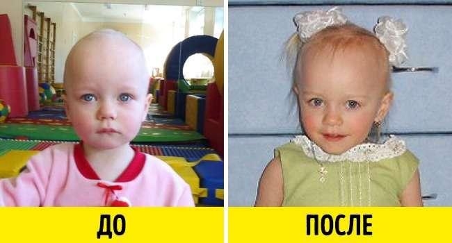 12фото малышей доусыновления ипосле, которые пробирают докома вгорле