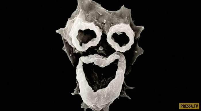 Амеба Неглерия Фоулера (Naegleria fowleri), которая питается мозгом (6 фото)