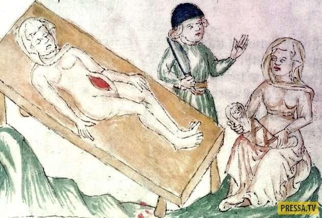 Топ 10: Ужасные вещи, которые наши предки считали нормальными (10 фото)