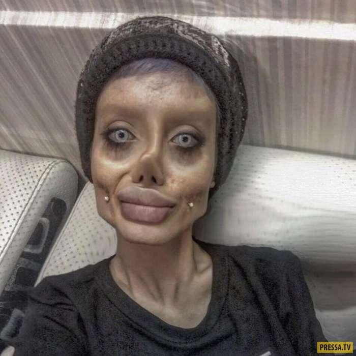 Уроженка Тегерана захотела стать похожей на Анджелину Джоли (9 фото)