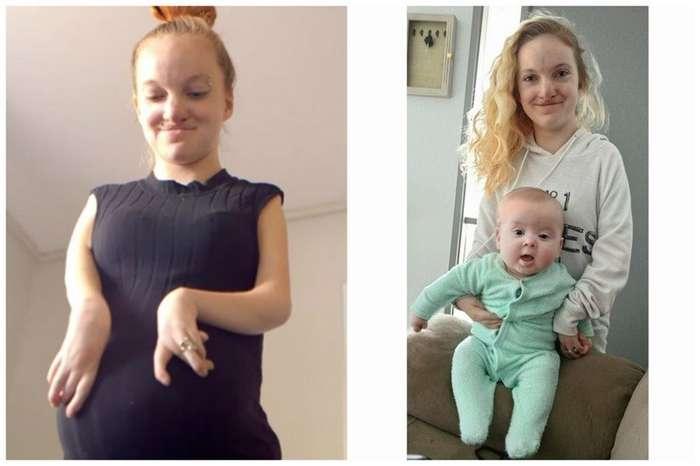 Она родилась практически без мышц, но сегодня в ее удивительную жизнь верится с трудом-15 фото-