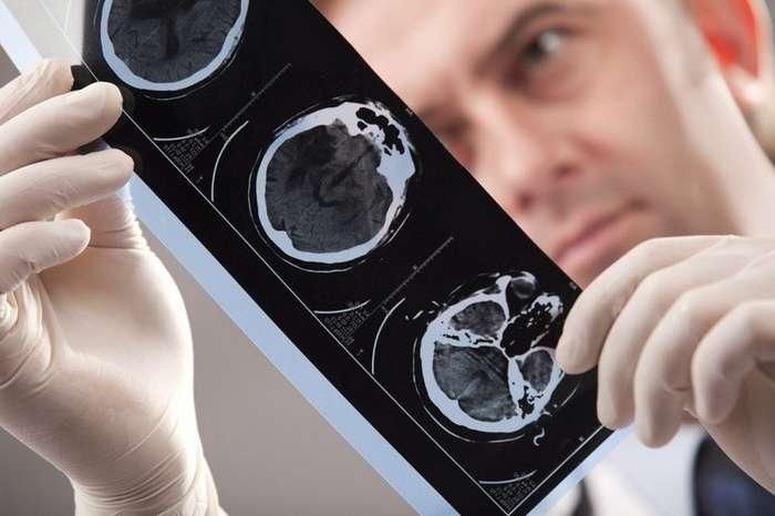 В Случае Инсульта, Вашу Жизнь Спасет ИГЛА! Смотрите, как оказать первую помощь при инсульте-5 фото-