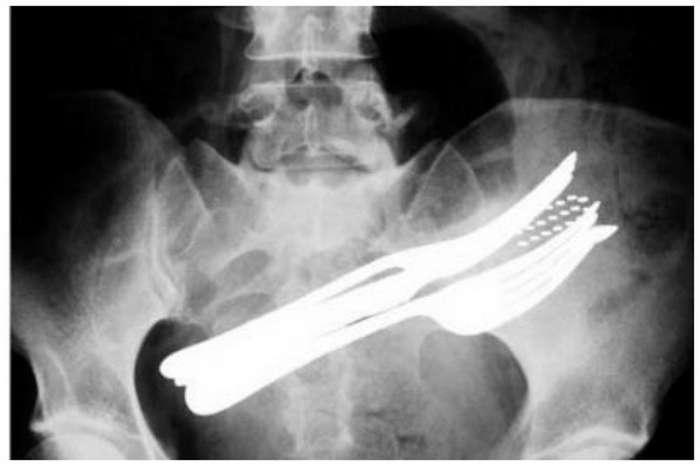 Мужчина обратился к врачам, и те обнаружили причину постоянных болей в желудке-12 фото + 1 видео-