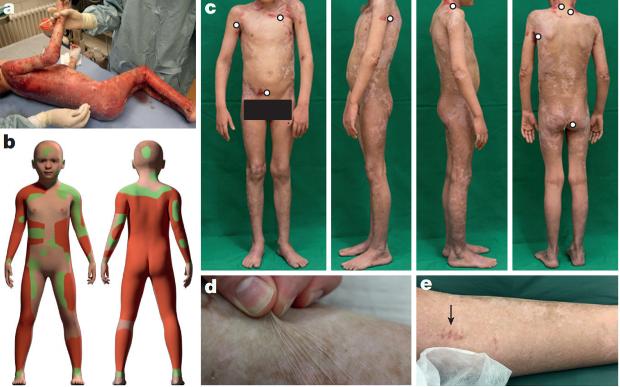 Ученые впервые вырастили полноценную кожу и пересадили ее ребенку-3 фото-