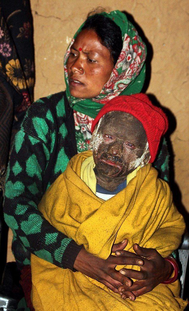 Через 15 дней после рождения с ребенка начала слезать кожа-13 фото + 1 видео-