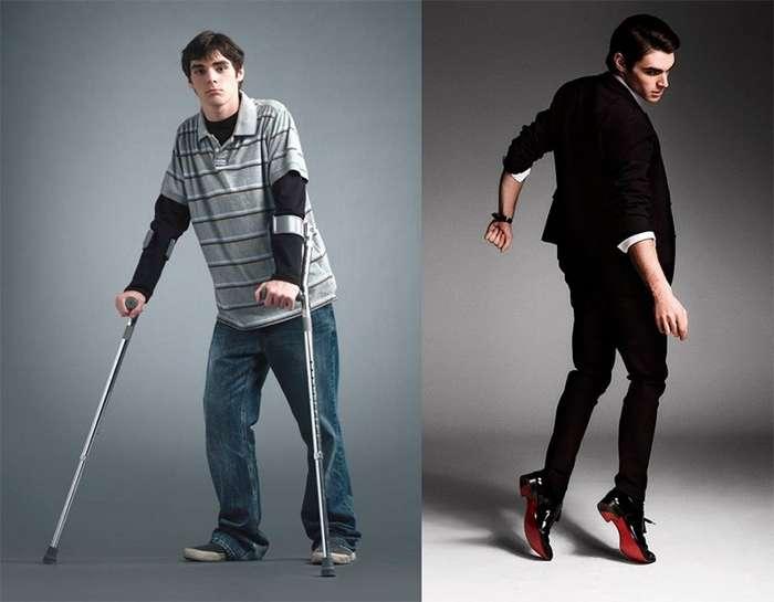 История жизни и борьбы парня-инвалида Ар-Джей Митта из сериала -Во все тяжкие--1 фото + 1 видео-