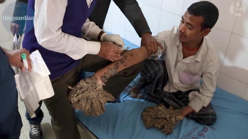 Житель Газы на десять лет заперся дома из-за страшной болезни-10 фото + 2 видео-