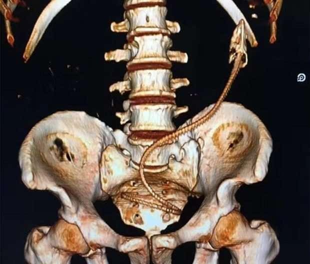 Врачи извлекли из задницы пьяного мужчины живого угря, и это далеко не первый случай-6 фото + 1 видео-