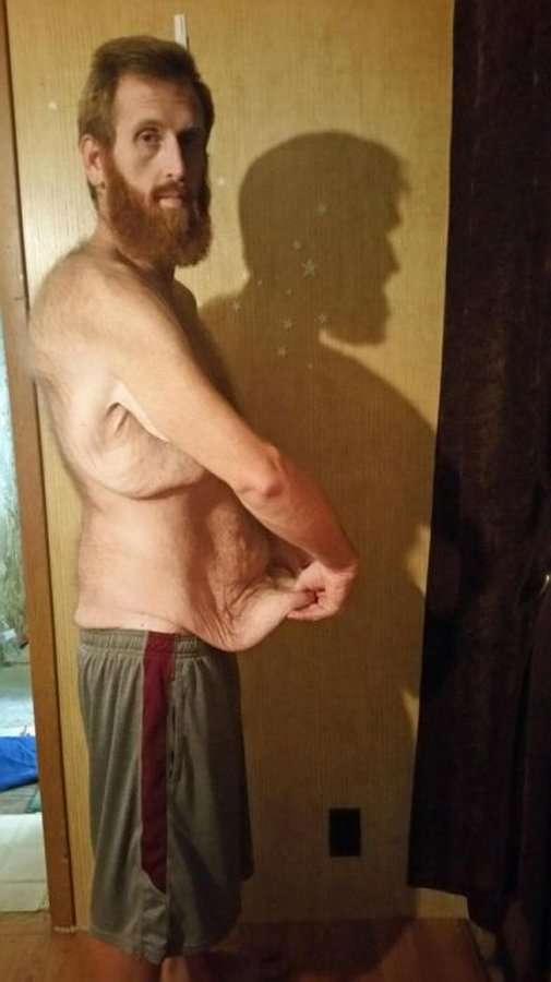 Зак Мур похудел на 160 кг, чтобы не умереть