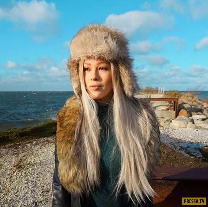 Облысение не помешало Терезе Хансон стать успешной моделью (13 фото)