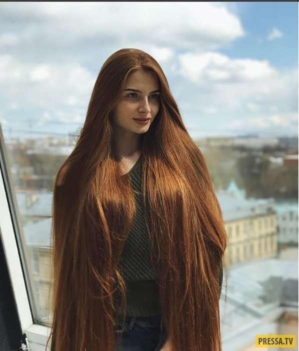Русская красавица Анастасия Сидорова, победившая облысение (10 фото)