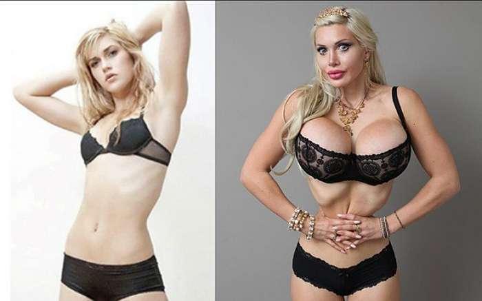 Шокирующие стандарты красоты у разных народов и возможности современной пластической хирургии (14 фото)
