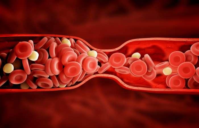 6 признаков тромба, которые ни в коем случае нельзя игнорировать