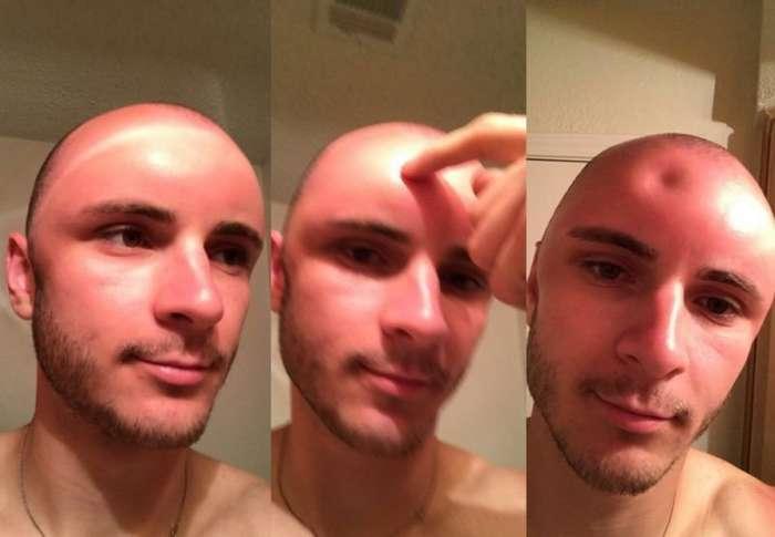 Вмятина на голове этого парня показывает, насколько важно пользоваться солнцезащитным кремом-5 фото-