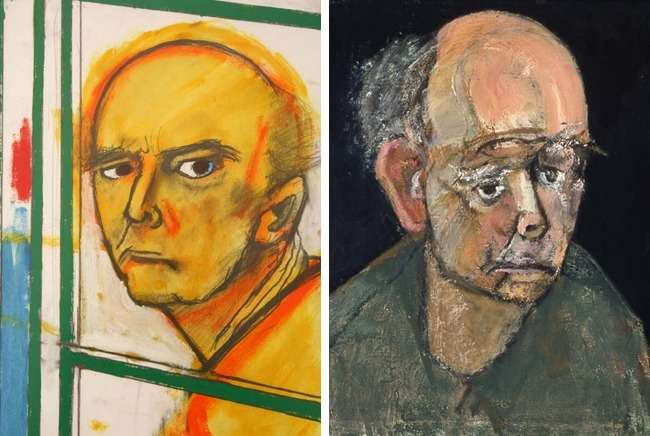 8рисунков художников сАльцгеймером, накоторых виден весь процесс развития болезни