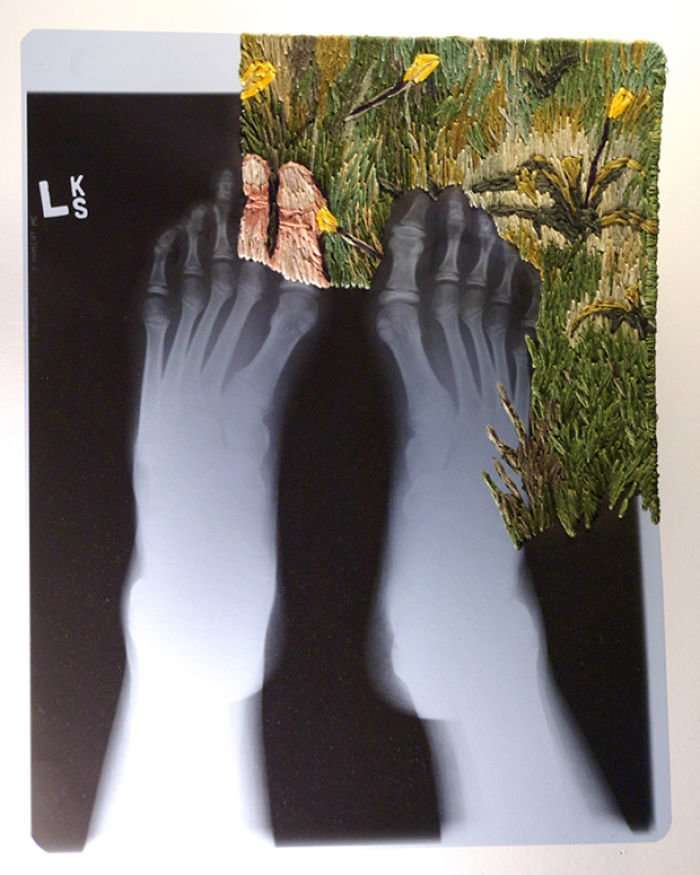 Рентгеновская пленка и вышивка: необычные картины Мэтью Кокса-26 фото-