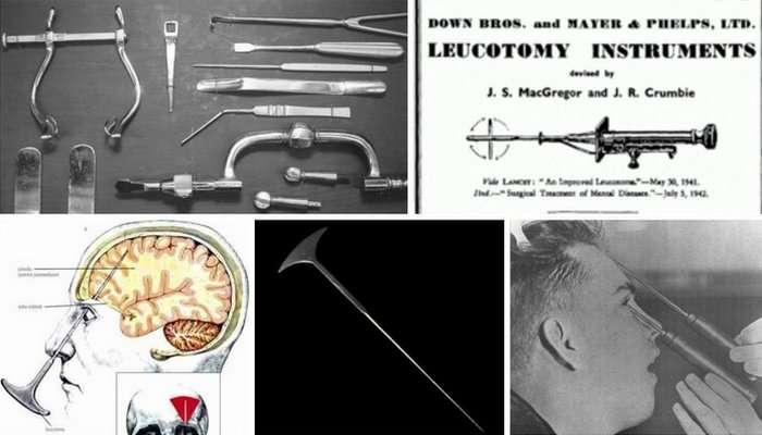 10 жутковатых идей, которые применялись в медицине в течение последних 100 лет