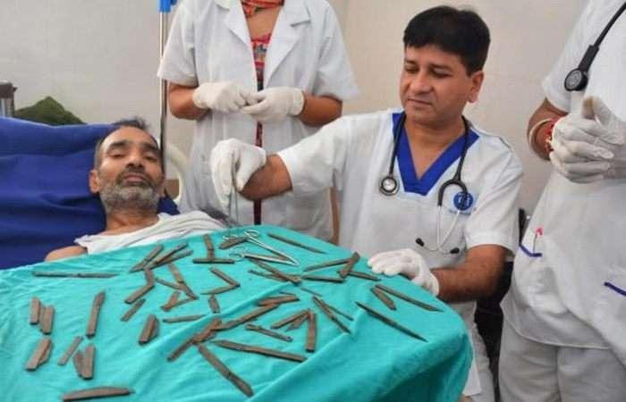 9 неожиданных предметов, которые врачи извлекли из пациентов