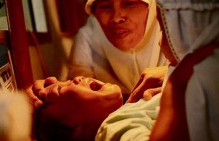 10 древних медицинских практик, которые холодят кровь