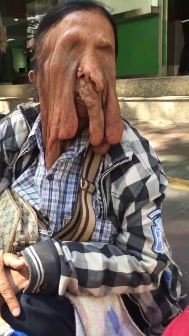 Женщина с 'растаявшим лицом' отказалась от хирургической операции-6 фото + 1 видео-
