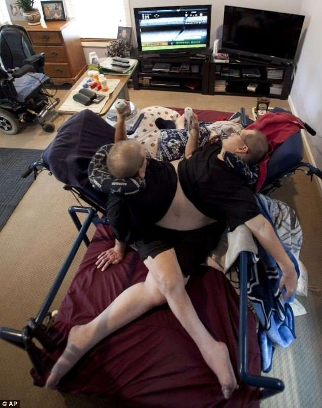 Невероятная жизнь рекордсменов Ронни и Донни Гелион-14 фото + 1 видео-